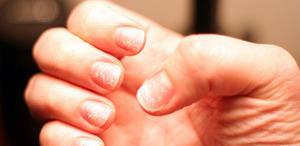 Почему ноготь отошел от ногтевого ложа