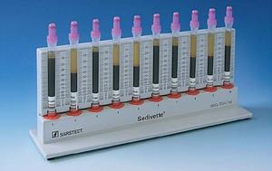 Методы определения СОЭ в крови у женщин